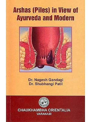 Arshas (Piles) in View of Ayurveda and Modern