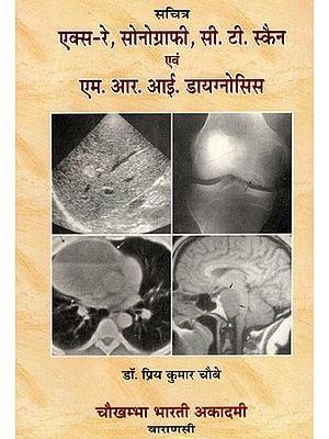 एक्स-रे, सोनोग्राफी, सी.टी. स्कैन एवं एम.आर.आई. डायगनोसिस - X-Ray, Sonography, C.T. Scan & M.R.I. Diagnosis (with Radiographs)