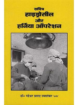 सचित्र हाइड्रोसील और हर्निया ऑपरेशन - Pictorial Hydrocele and Hernia Operation