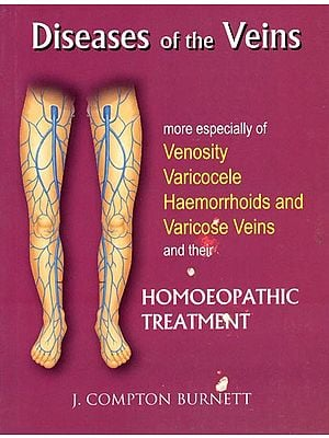 Diseases of The Veins (More Especially of Venosity Varicocele Haemorrhoids and Varicose Veins and Their Homoeopathic Treatment)