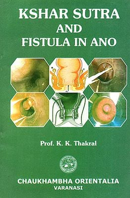 Kshar Sutra and Fistula in Ano
