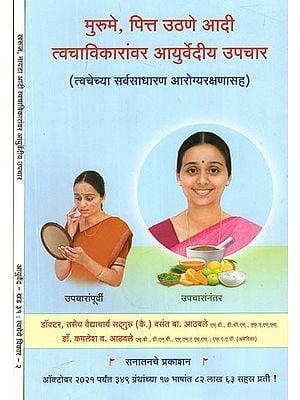 त्वचेच्या विकारांवर आयुर्वेदीय उपचार - Ayurvedic Treatment For Skin Disorders In Marathi (Set of 2 Volumes)