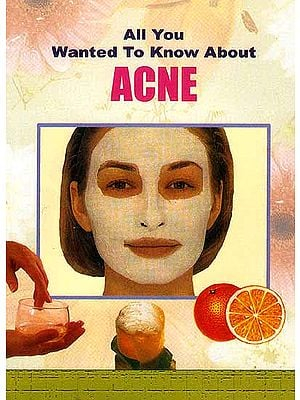 All You Wanted to Know About Acne