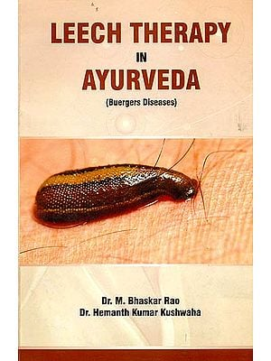 Leech Therapy in Ayurveda (Buergers Diseases)